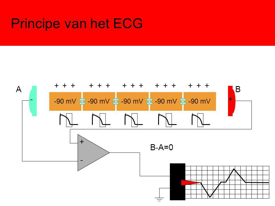 Principe van het ECG -90 mV -+ - + AB B-A=0 + + + + + + + + + + + + + + +