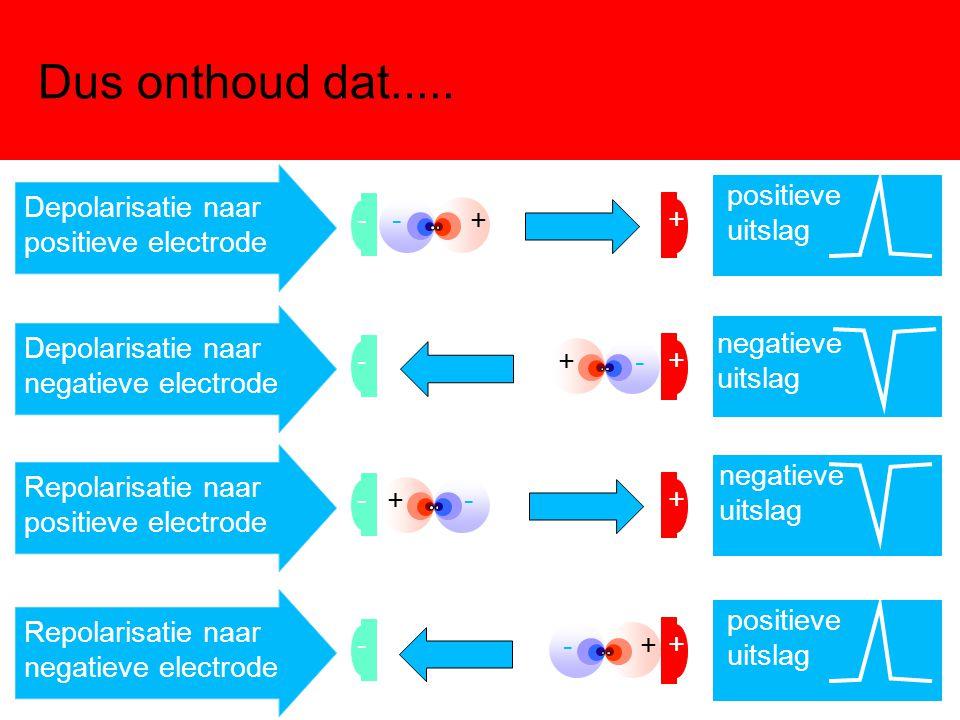 Dus onthoud dat..... + - -+ Depolarisatie naar positieve electrode positieve uitslag + - -+ Depolarisatie naar negatieve electrode negatieve uitslag +