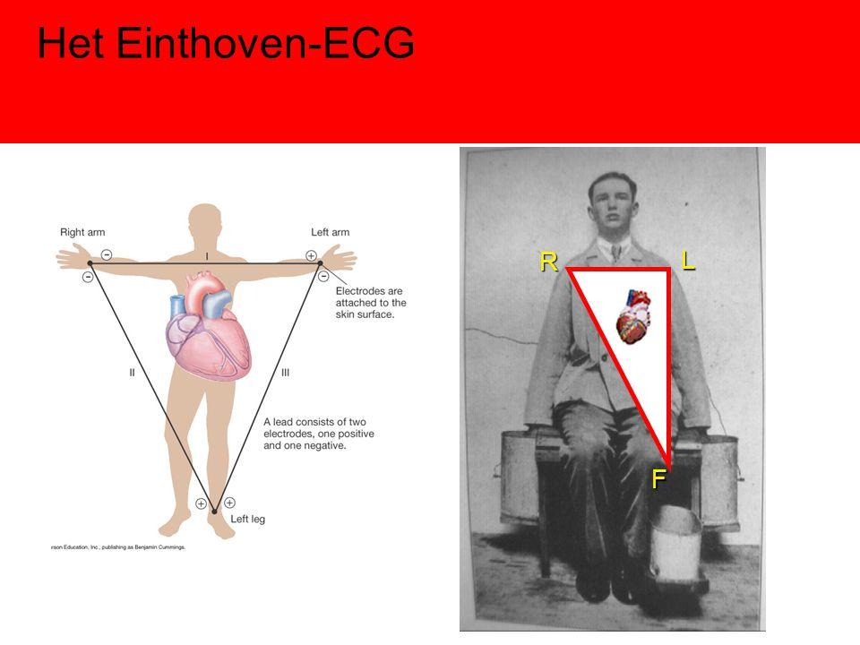 Het Einthoven-ECGRLF