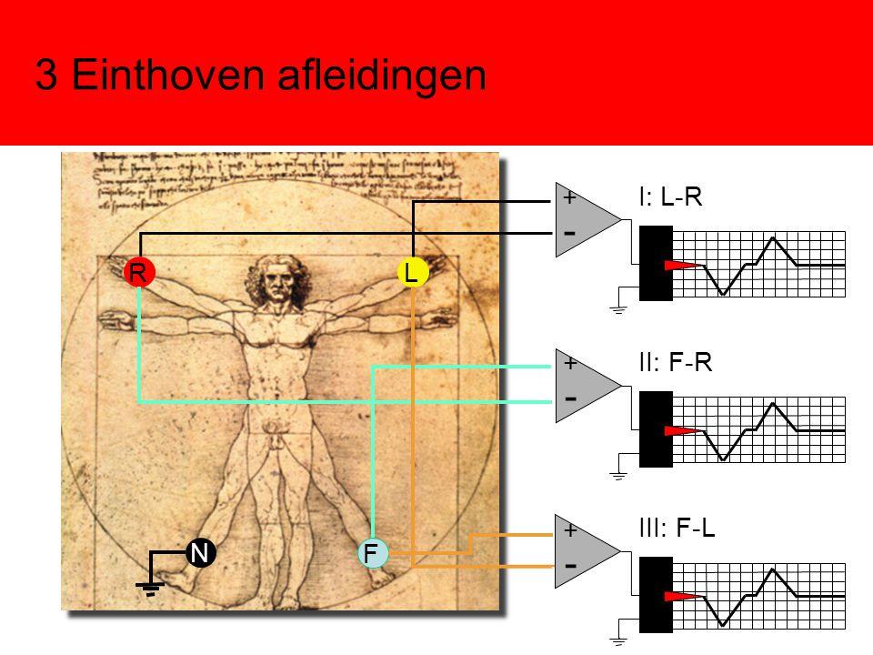 3 Einthoven afleidingen F RL N I: L-R - + II: F-R - + III: F-L - +