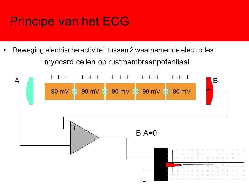 Principe van het ECG Beweging electrische activiteit tussen 2 waarnemende electrodes:Beweging electrische activiteit tussen 2 waarnemende electrodes:
