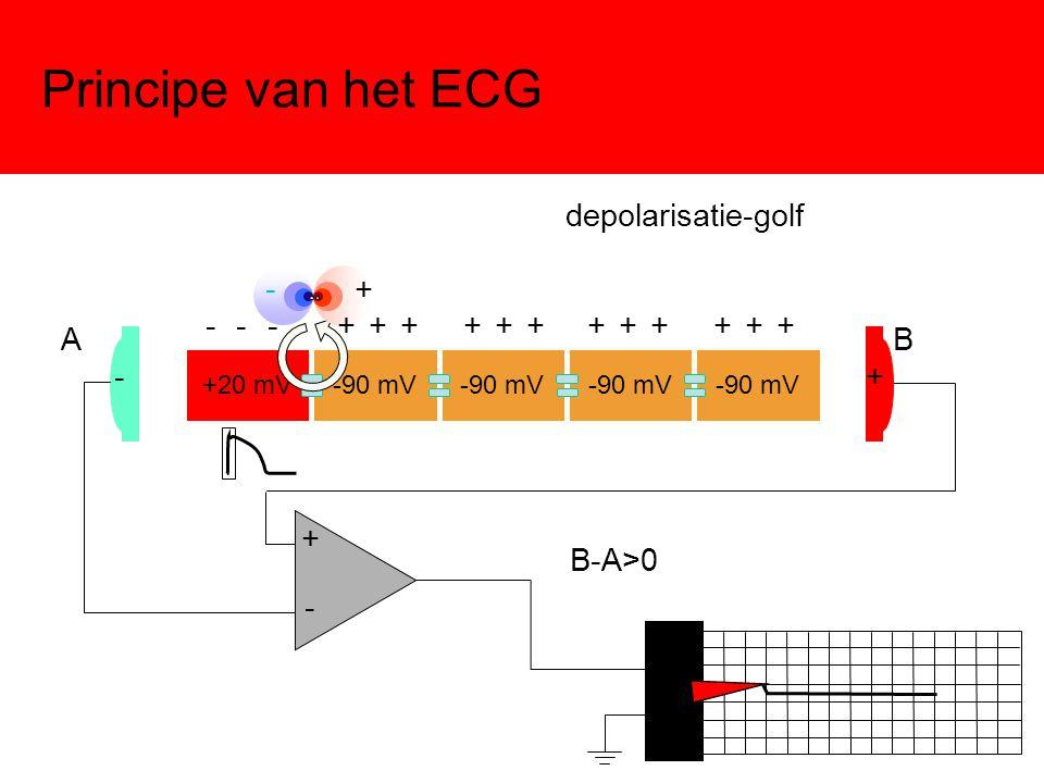Principe van het ECG +20 mV-90 mV depolarisatie-golf -+ - + AB + - B-A>0 - - - + + + + + + + + + + + +