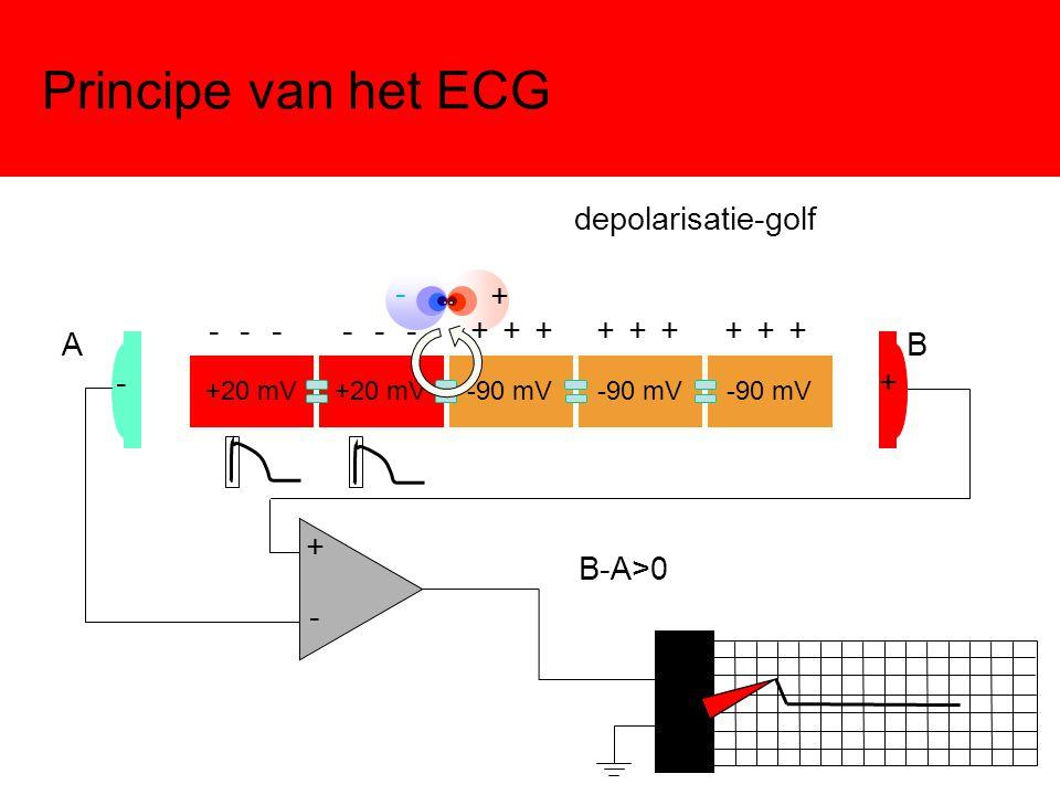 Principe van het ECG +20 mV -90 mV -+ - + AB + - B-A>0 - - - - - - + + + + + + + + + depolarisatie-golf