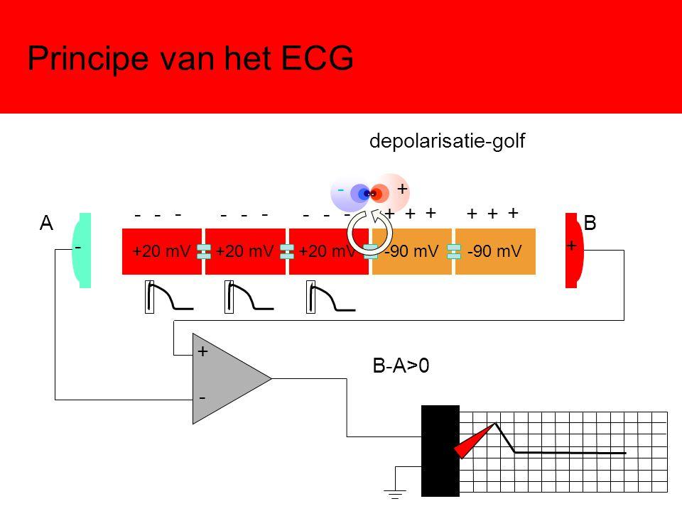 Principe van het ECG +20 mV -90 mV -+ - + AB + - B-A>0 - - - - - - - - - + + + + + + depolarisatie-golf