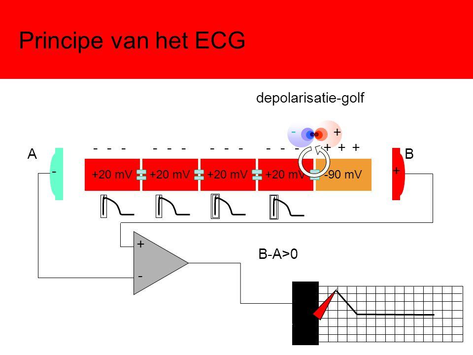 Principe van het ECG +20 mV -90 mV -+ - + AB + - B-A>0 - - - - - - - - - - - - + + + depolarisatie-golf