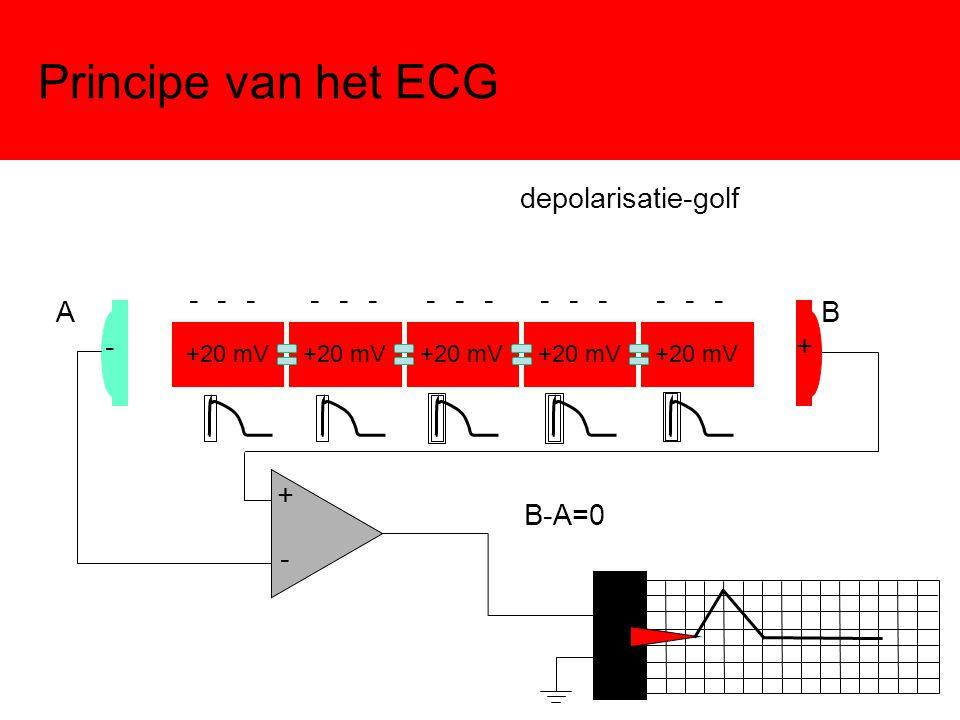 Principe van het ECG +20 mV -+ - + AB B-A=0 - - - - - - - - - - - - - - - depolarisatie-golf