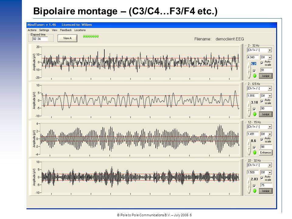 © Pole to Pole Communications B.V. – July 2005 5 Bipolaire montage – (C3/C4…F3/F4 etc.)