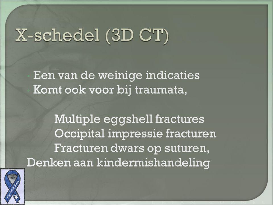 X-schedel Gegooid van hoogte, dwars op sutuur