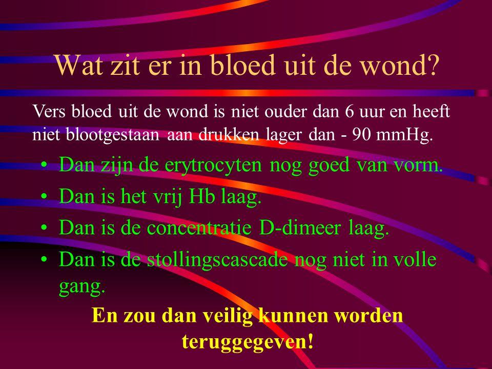 Erytrocyten filtreren Dan houd je niets meer over! Daarmee houd je het vrij hemoglobine niet tegen! Daarmee houd je geen histamine en d-dimeer tegen!