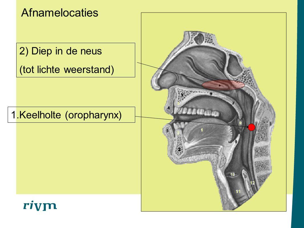 2) Diep in de neus (tot lichte weerstand) 1.Keelholte (oropharynx) Afnamelocaties