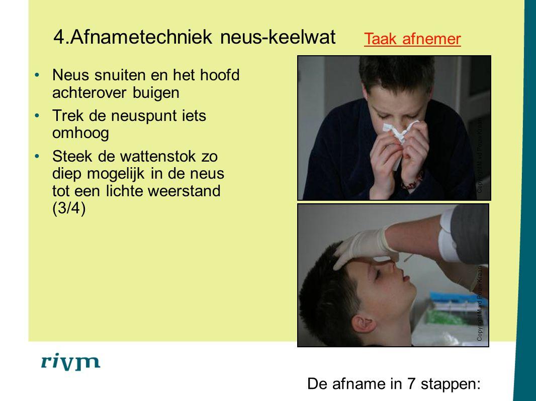 4.Afnametechniek neus-keelwat Neus snuiten en het hoofd achterover buigen Trek de neuspunt iets omhoog Steek de wattenstok zo diep mogelijk in de neus