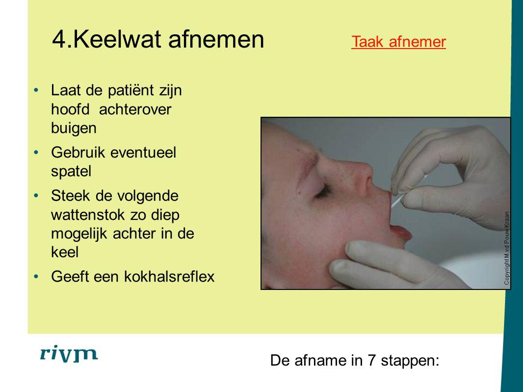 4.Keelwat afnemen Laat de patiënt zijn hoofd achterover buigen Gebruik eventueel spatel Steek de volgende wattenstok zo diep mogelijk achter in de kee