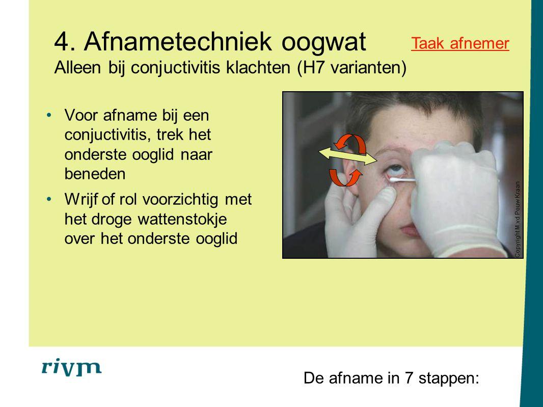 4. Afnametechniek oogwat Alleen bij conjuctivitis klachten (H7 varianten) Voor afname bij een conjuctivitis, trek het onderste ooglid naar beneden Wri