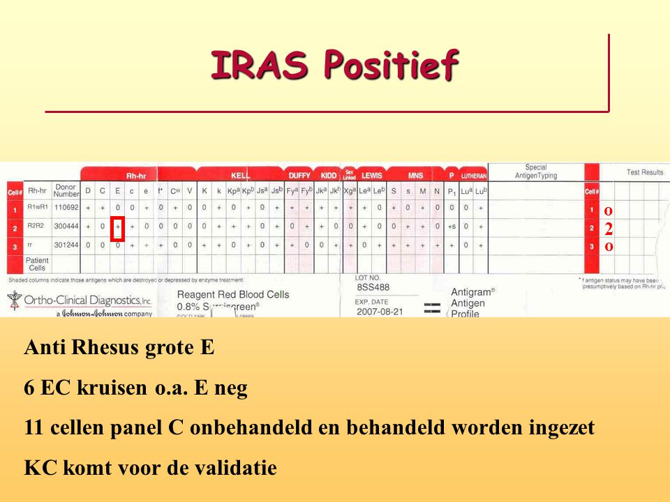 IRAS Positief o o 2 Anti Rhesus grote E 6 EC kruisen o.a. E neg 11 cellen panel C onbehandeld en behandeld worden ingezet KC komt voor de validatie