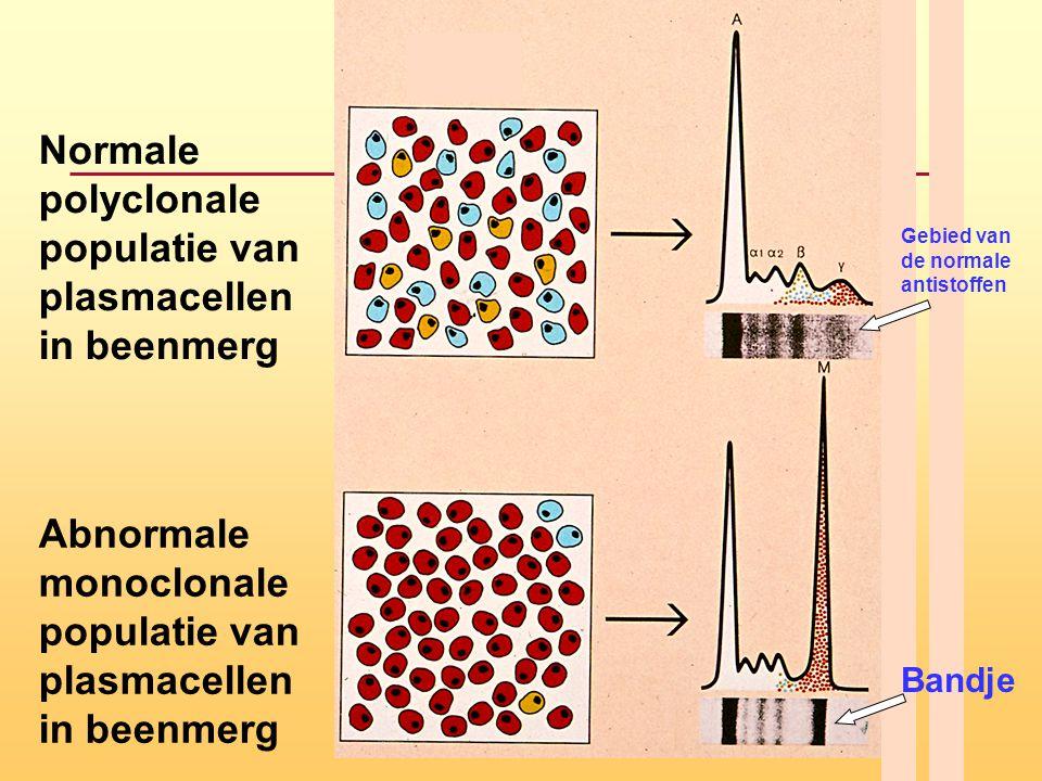 Normale polyclonale populatie van plasmacellen in beenmerg Abnormale monoclonale populatie van plasmacellen in beenmerg Bandje Gebied van de normale a