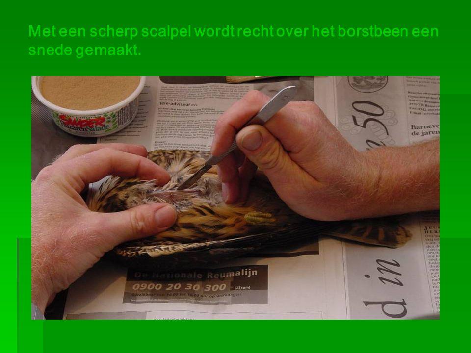 Met een scherp scalpel wordt recht over het borstbeen een snede gemaakt.