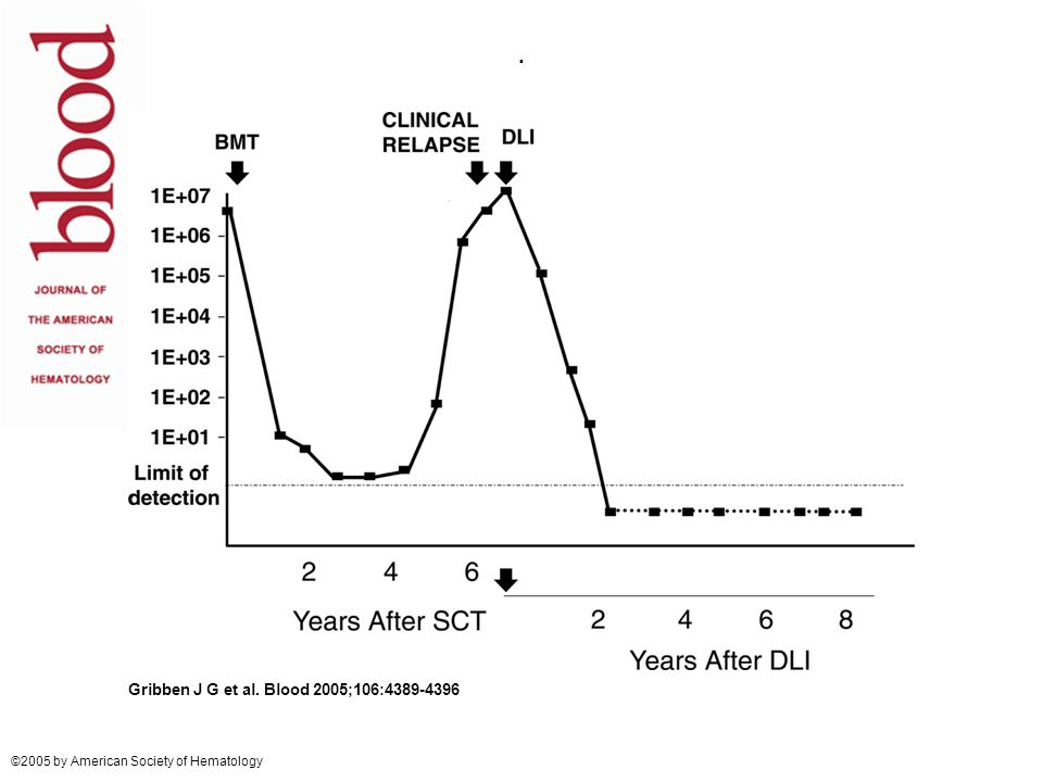 HOVON 88 CLL Allogeneic stem cell transplantation after reduced intensity conditioning for high-risk relapsed or refractory CLL.