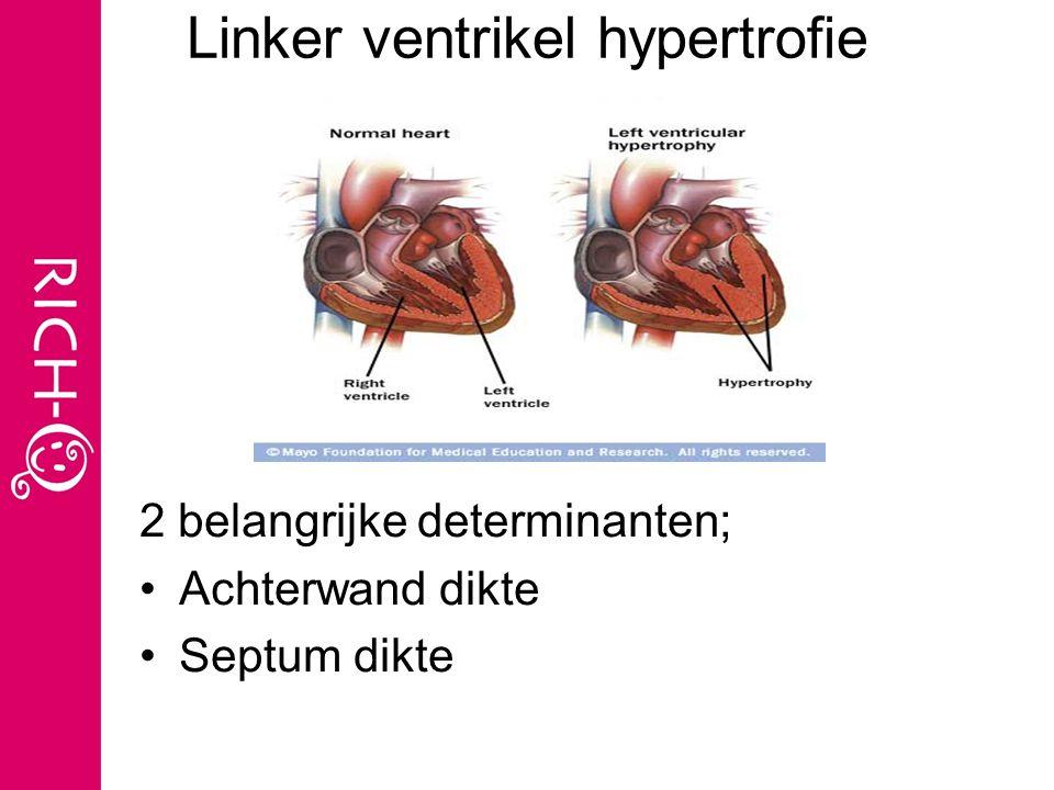 Linker ventrikel hypertrofie 2 belangrijke determinanten; Achterwand dikte Septum dikte