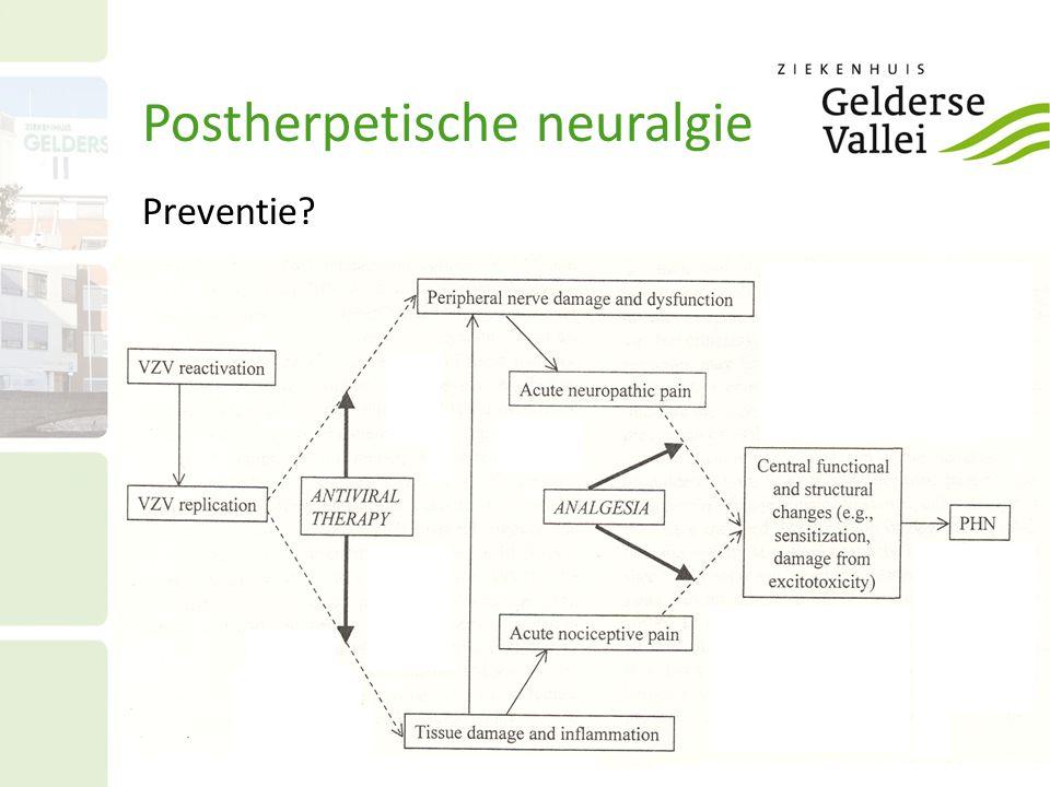 Postherpetische neuralgie Preventie?