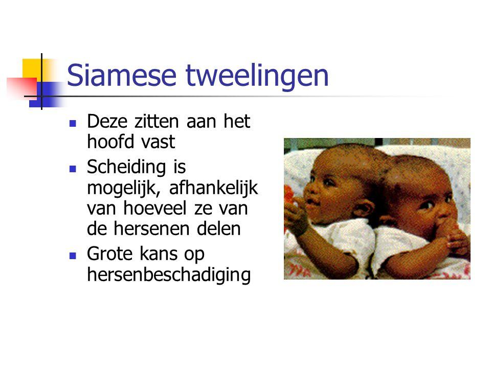 Siamese tweelingen Deze zitten aan het hoofd vast Scheiding is mogelijk, afhankelijk van hoeveel ze van de hersenen delen Grote kans op hersenbeschadiging