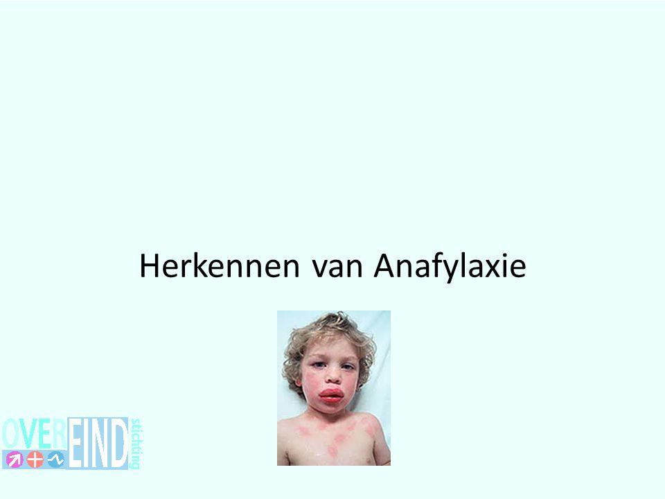 Herkennen van Anafylaxie