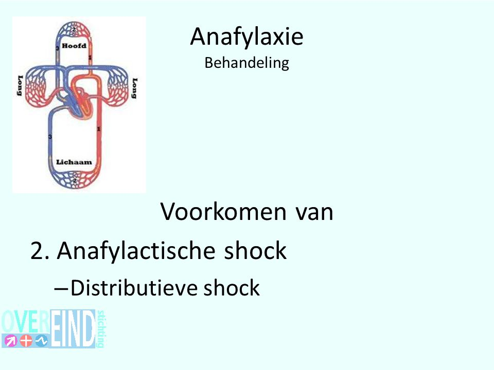 Anafylaxie Behandeling Voorkomen van 2. Anafylactische shock – Distributieve shock
