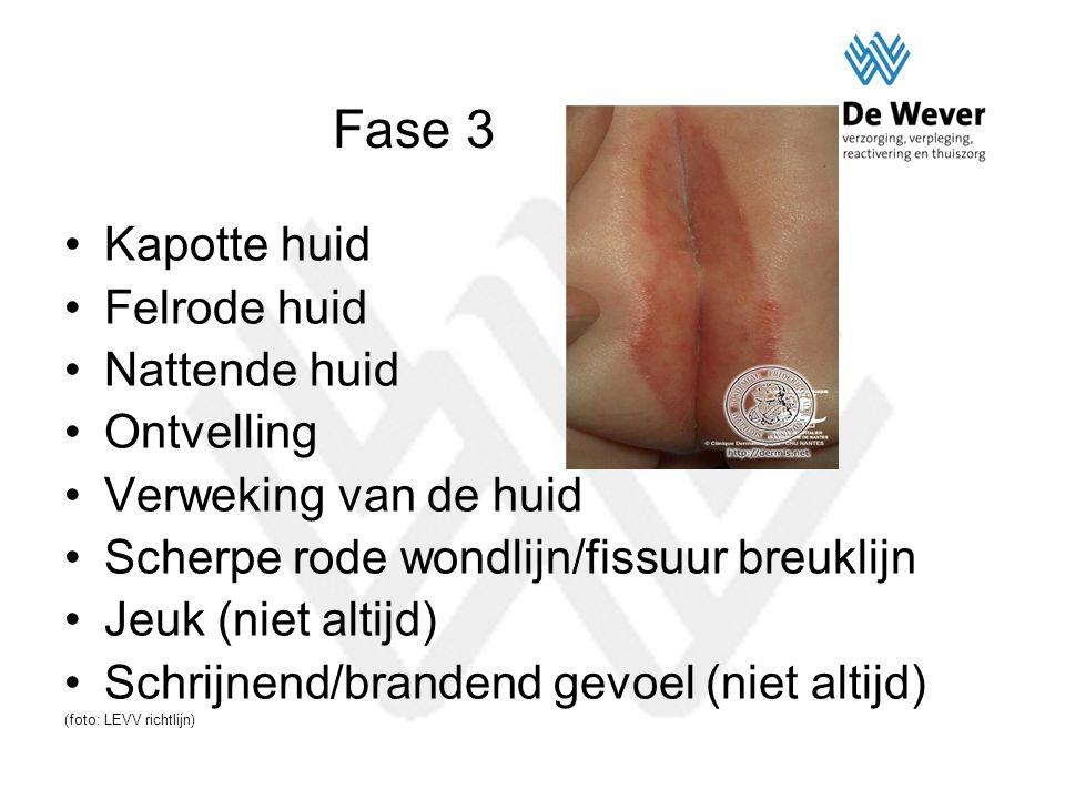 Fase 3 Kapotte huid Felrode huid Nattende huid Ontvelling Verweking van de huid Scherpe rode wondlijn/fissuur breuklijn Jeuk (niet altijd) Schrijnend/