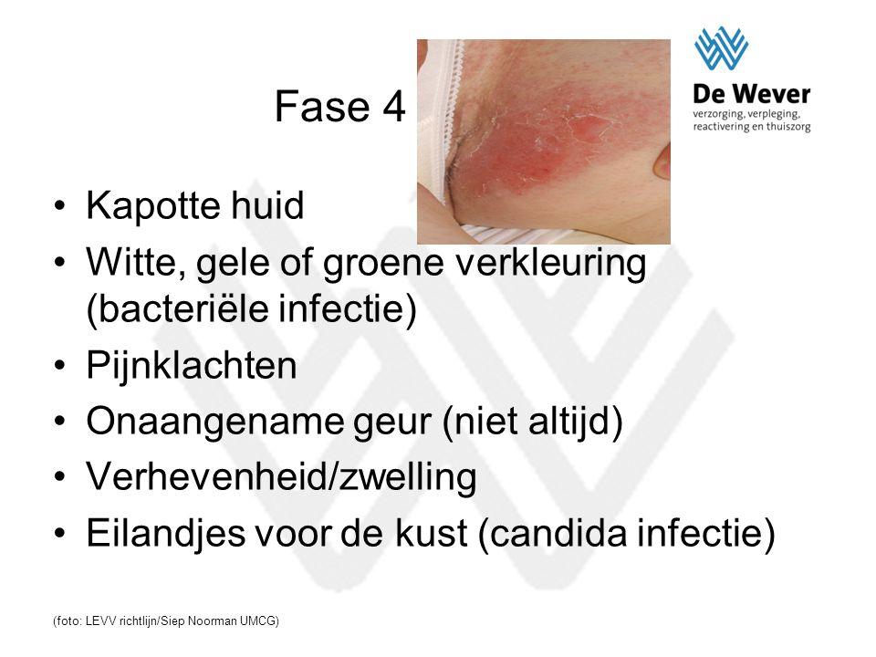Fase 4 Kapotte huid Witte, gele of groene verkleuring (bacteriële infectie) Pijnklachten Onaangename geur (niet altijd) Verhevenheid/zwelling Eilandje