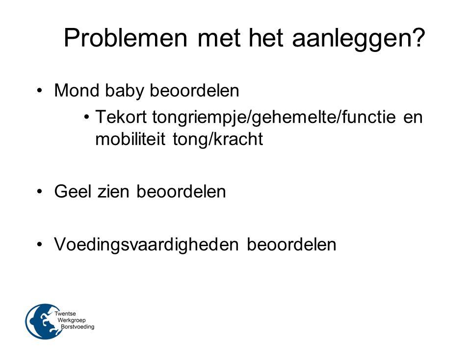 Problemen met het aanleggen? Mond baby beoordelen Tekort tongriempje/gehemelte/functie en mobiliteit tong/kracht Geel zien beoordelen Voedingsvaardigh