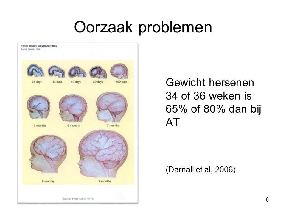 Oorzaak problemen Gewicht hersenen 34 of 36 weken is 65% of 80% dan bij AT (Darnall et al, 2006) 6