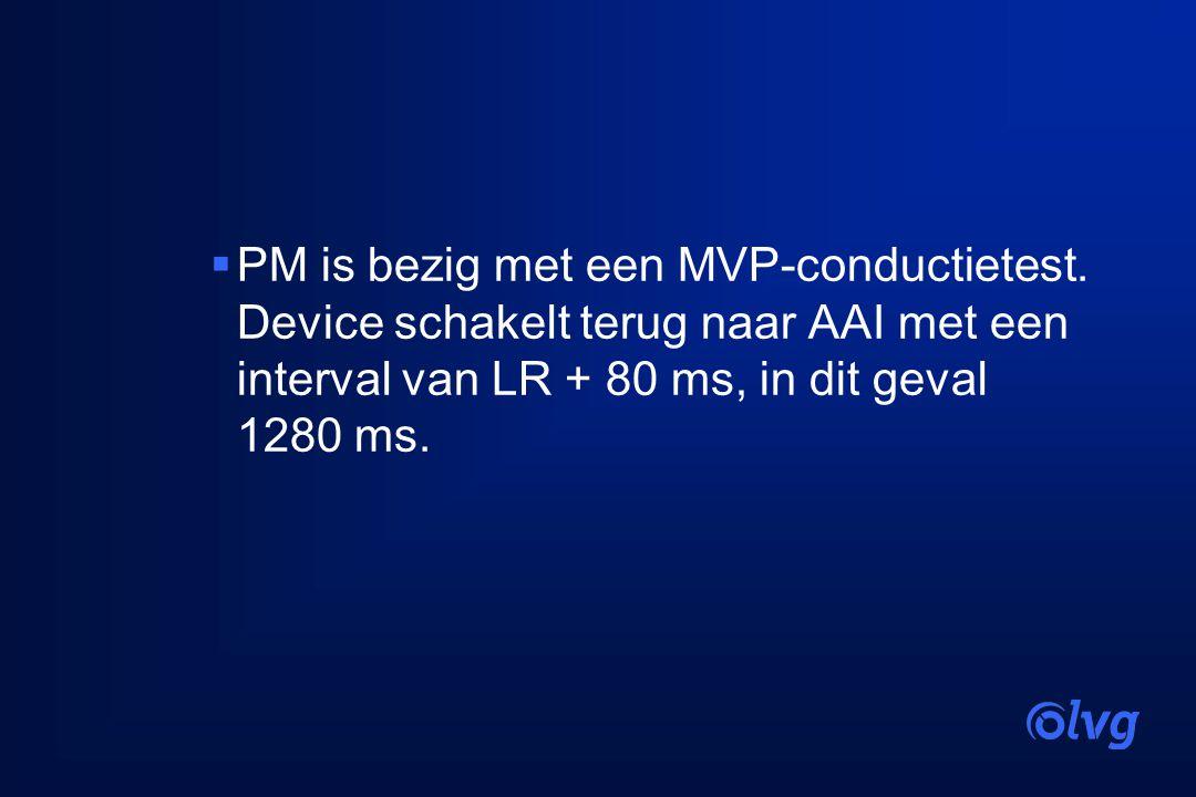  PM is bezig met een MVP-conductietest. Device schakelt terug naar AAI met een interval van LR + 80 ms, in dit geval 1280 ms.