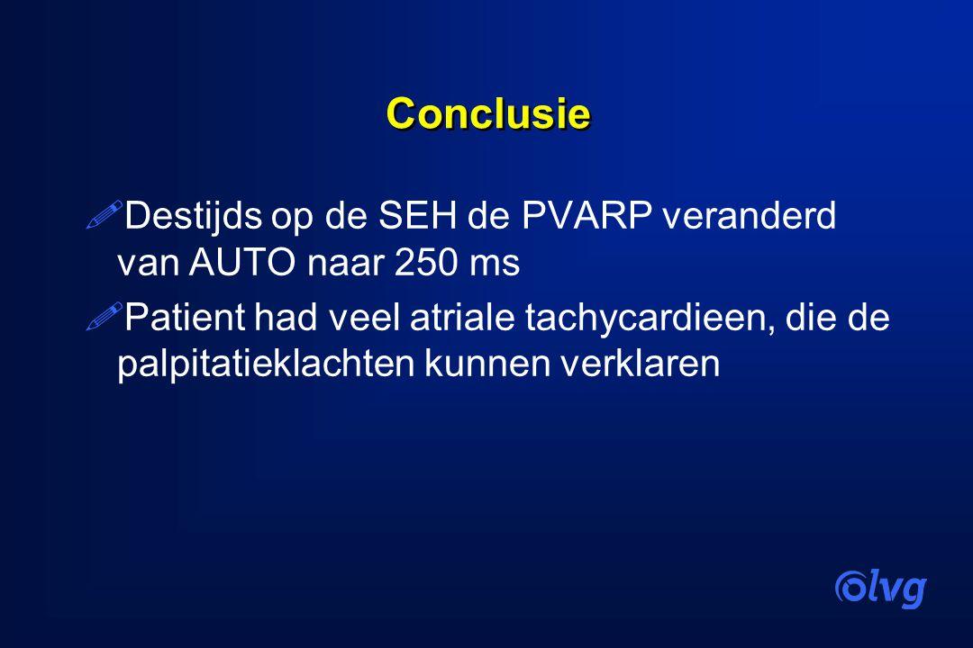 Conclusie !Destijds op de SEH de PVARP veranderd van AUTO naar 250 ms !Patient had veel atriale tachycardieen, die de palpitatieklachten kunnen verkla