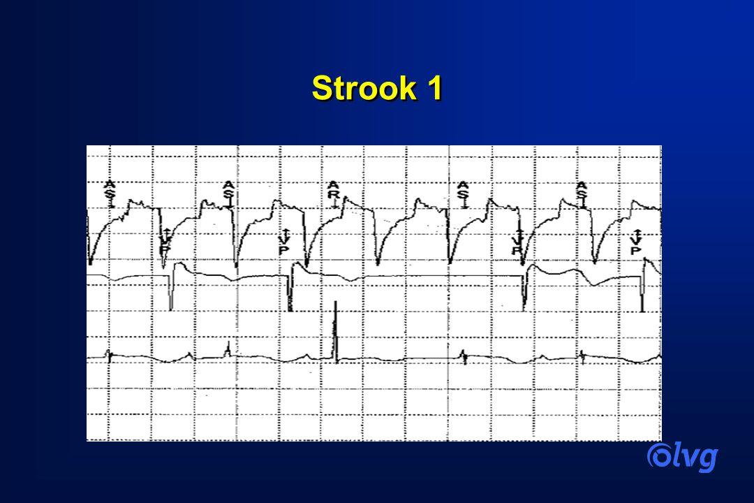 Strook 1