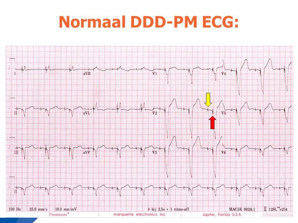 Normaal DDD-PM ECG: