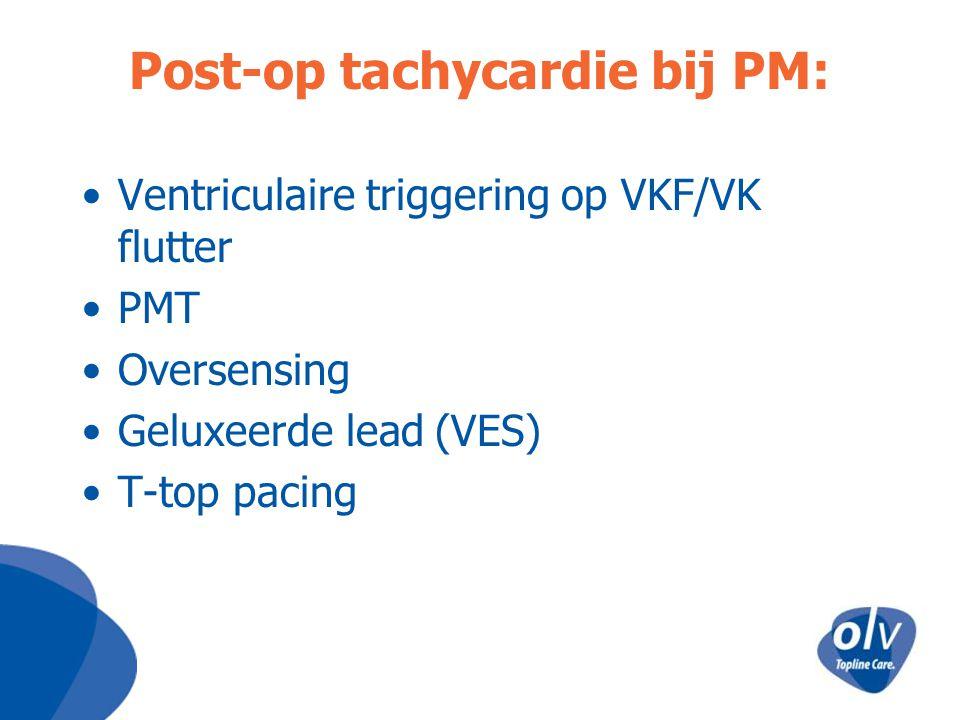 Post-op tachycardie bij PM: Ventriculaire triggering op VKF/VK flutter PMT Oversensing Geluxeerde lead (VES) T-top pacing