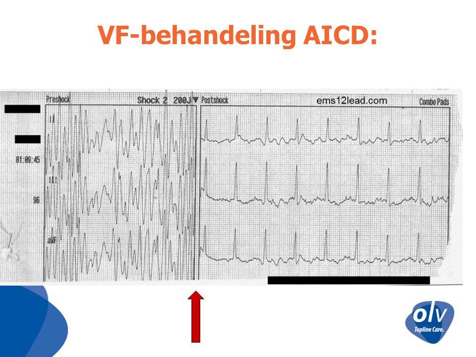 VF-behandeling AICD: