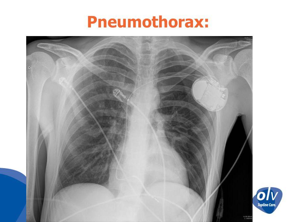 Hemothorax: Vooral tgv accidentele arteriele punctie Heelkundige exploratie in functie van: –Hoeveelheid bloed –Hemodynamische toestand patient