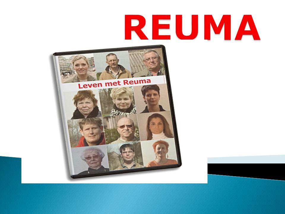 Reuma is alle ………………………..waarbij sprake is van een ontsteking in de gewrichten  Reumatoïde artritis  Arthrosis deformans (artrose)