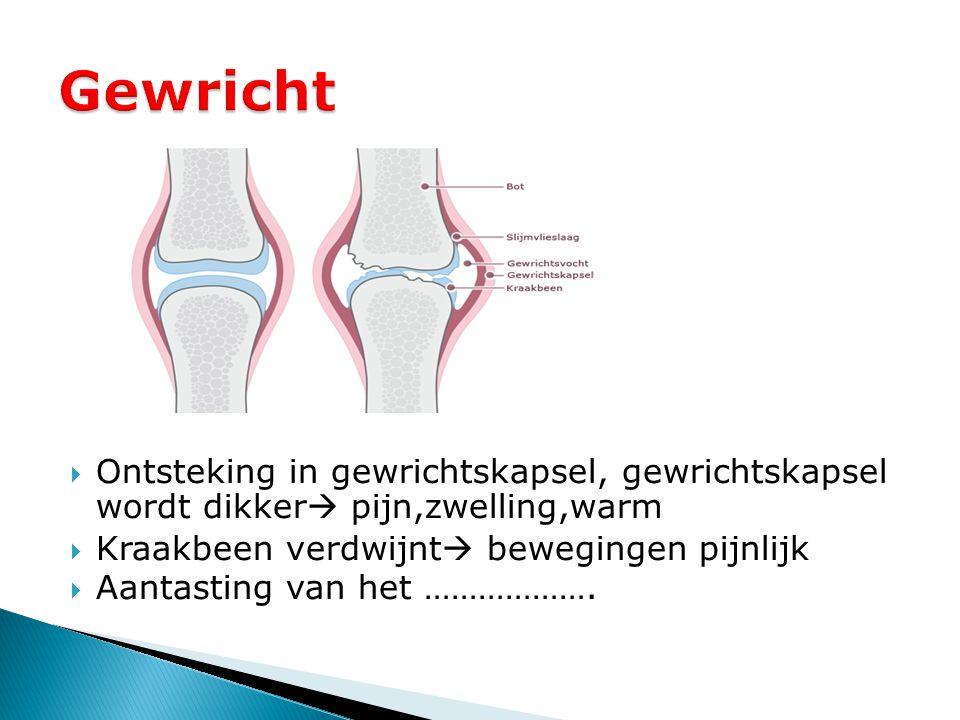  Ontsteking in gewrichtskapsel, gewrichtskapsel wordt dikker  pijn,zwelling,warm  Kraakbeen verdwijnt  bewegingen pijnlijk  Aantasting van het ……