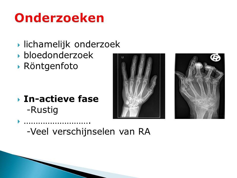  lichamelijk onderzoek  bloedonderzoek  Röntgenfoto  In-actieve fase -Rustig  ………………………. -Veel verschijnselen van RA