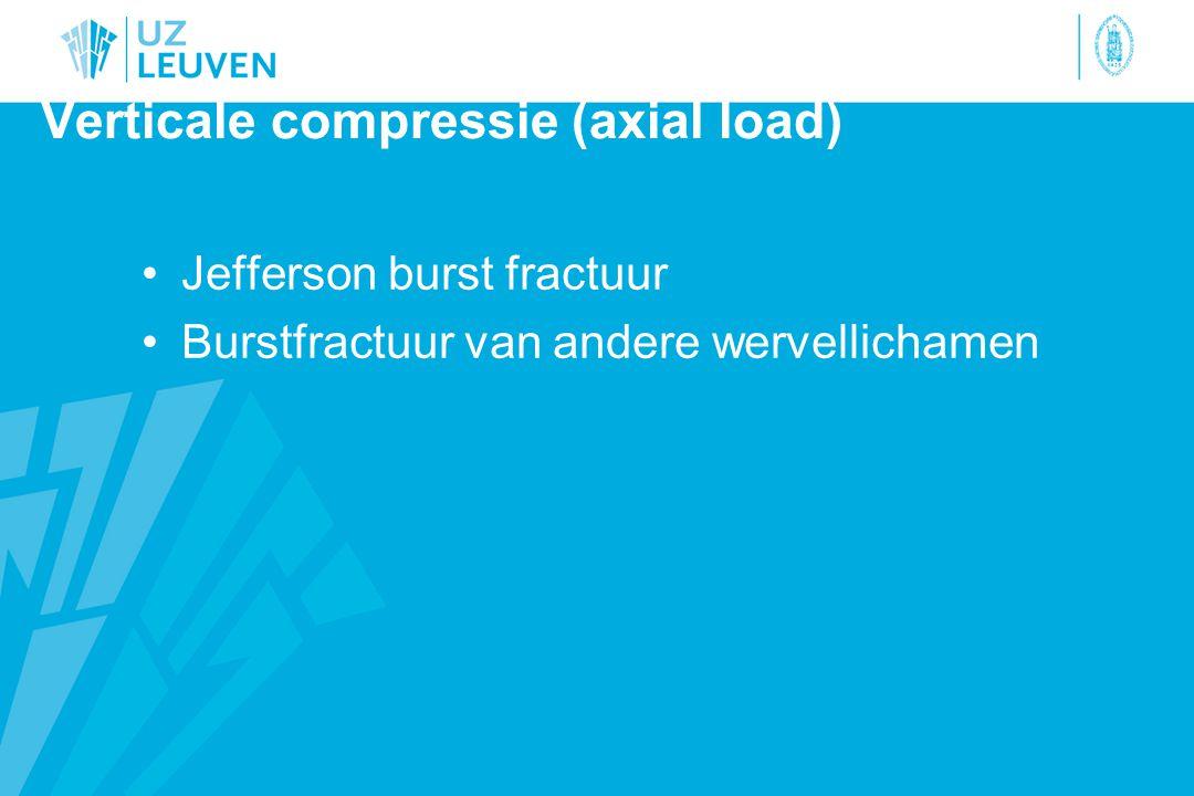 Verticale compressie (axial load) Jefferson burst fractuur Burstfractuur van andere wervellichamen