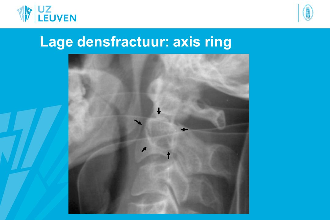 Lage densfractuur: axis ring
