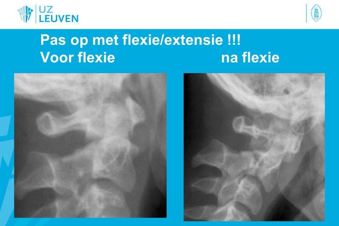 Pas op met flexie/extensie !!! Voor flexiena flexie