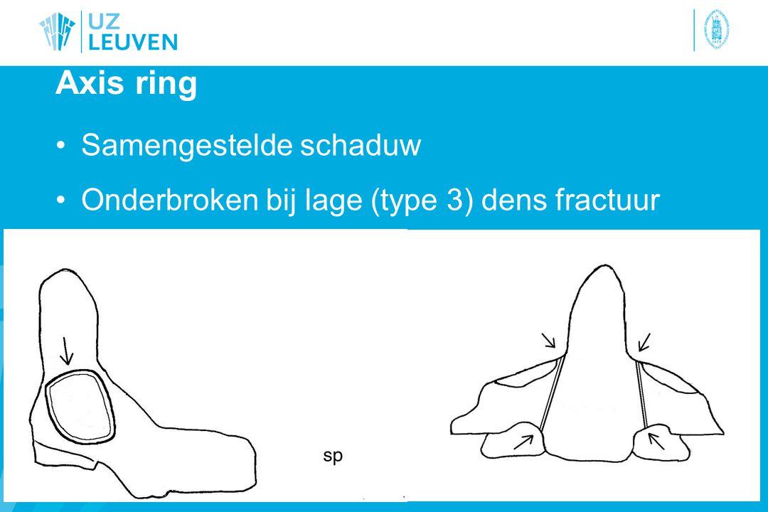 Axis ring Samengestelde schaduw Onderbroken bij lage (type 3) dens fractuur