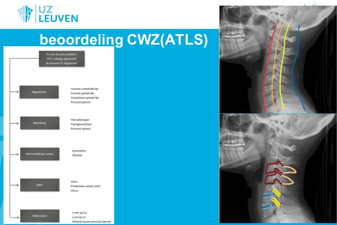 Interspineuze afstand Verbreding op profiel: ruptuur posterieure ligamenten (whiplash) CAVE: is normaal C1-C2 Op face: verbreding = (sub)-luxatie in facetgewrichten