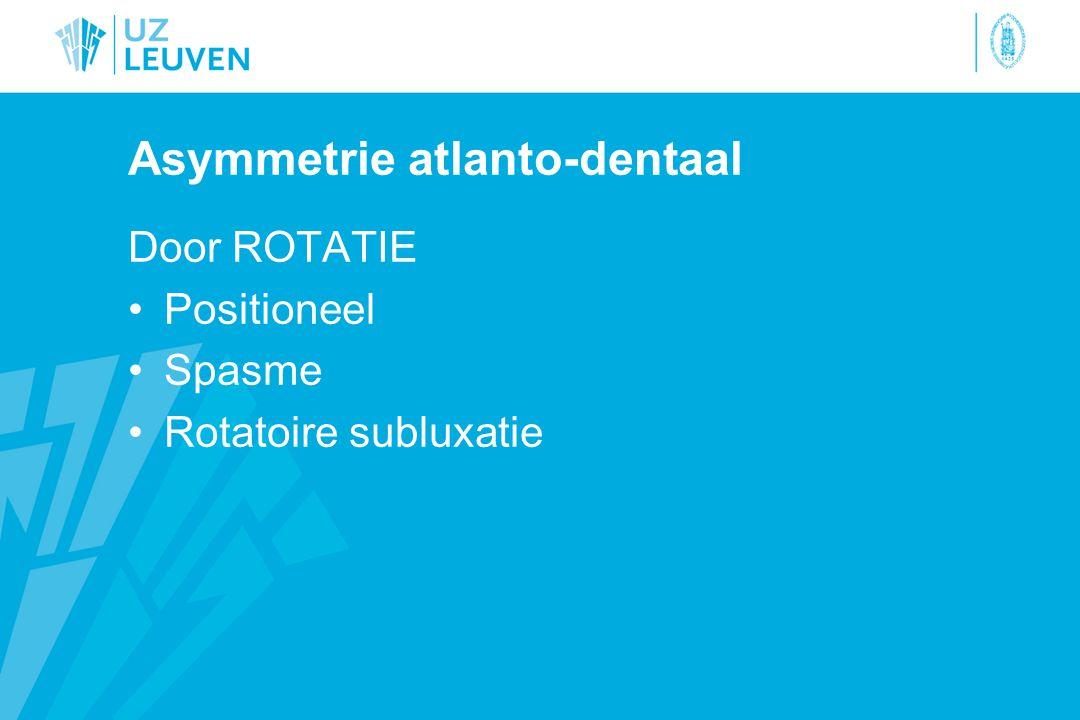 Asymmetrie atlanto-dentaal Door ROTATIE Positioneel Spasme Rotatoire subluxatie