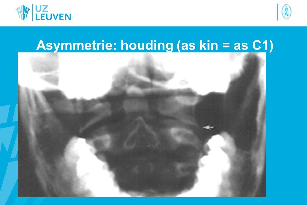Asymmetrie: houding (as kin = as C1)