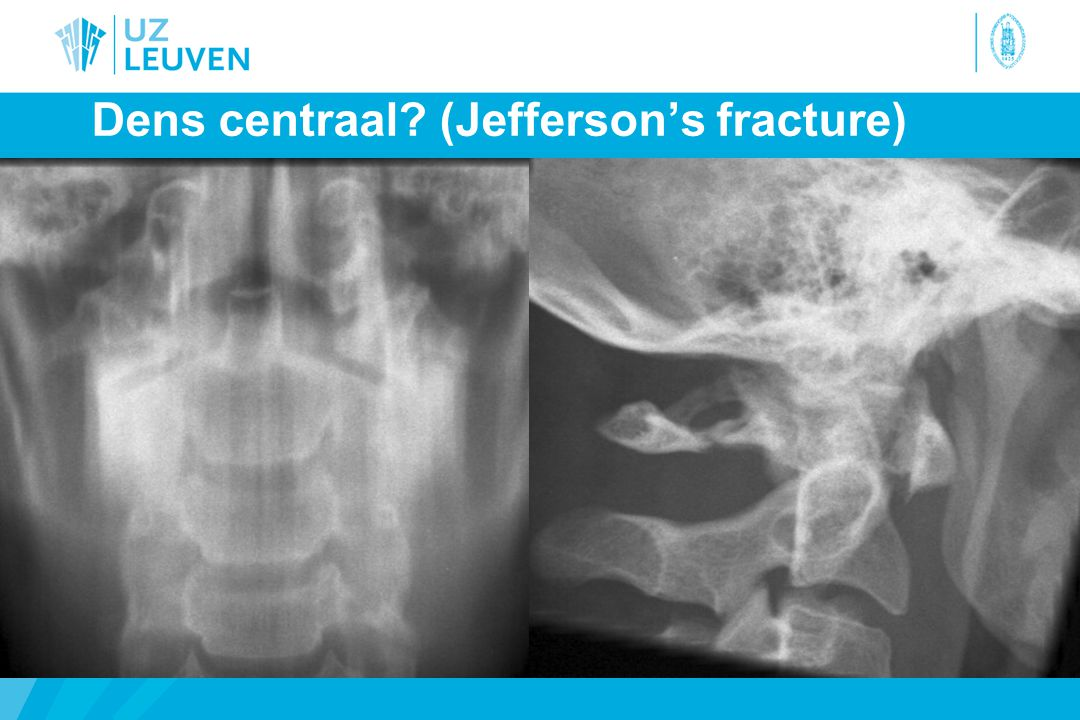 Dens centraal? (Jefferson's fracture)