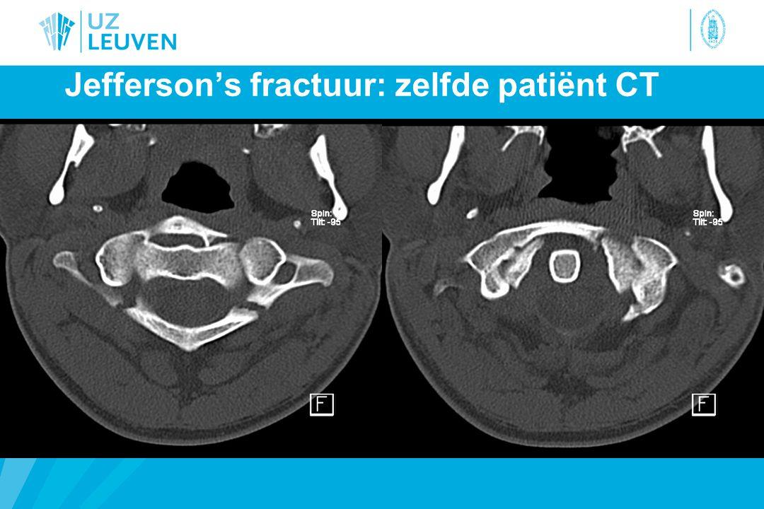 Jefferson's fractuur: zelfde patiënt CT