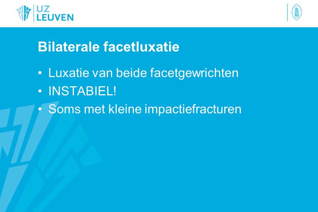 Bilaterale facetluxatie Luxatie van beide facetgewrichten INSTABIEL.